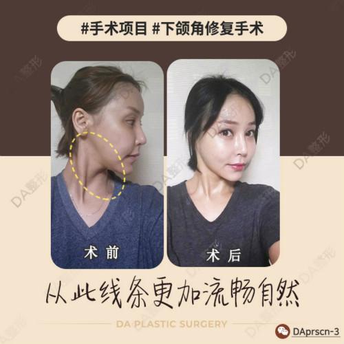 在韩国DA整形医院做最后一次下颌角修复手术