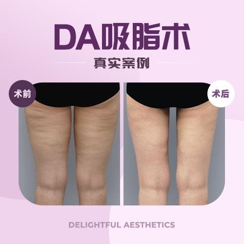 韩国DA整形医院告诉你吸脂到底靠不靠谱!