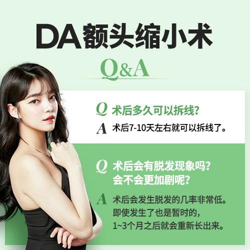 韩国DA整形医院告诉你额头缩小术的优势