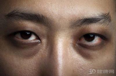 拒绝熊猫眼,来幻眼国际无痕去黑眼圈吧