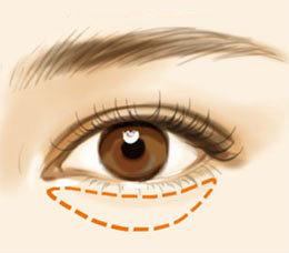 祛除眼袋选对方法很重要,幻眼国际空化去眼袋,仪器操作效果好